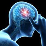 درباره سکته مغزی چه می دانید؟